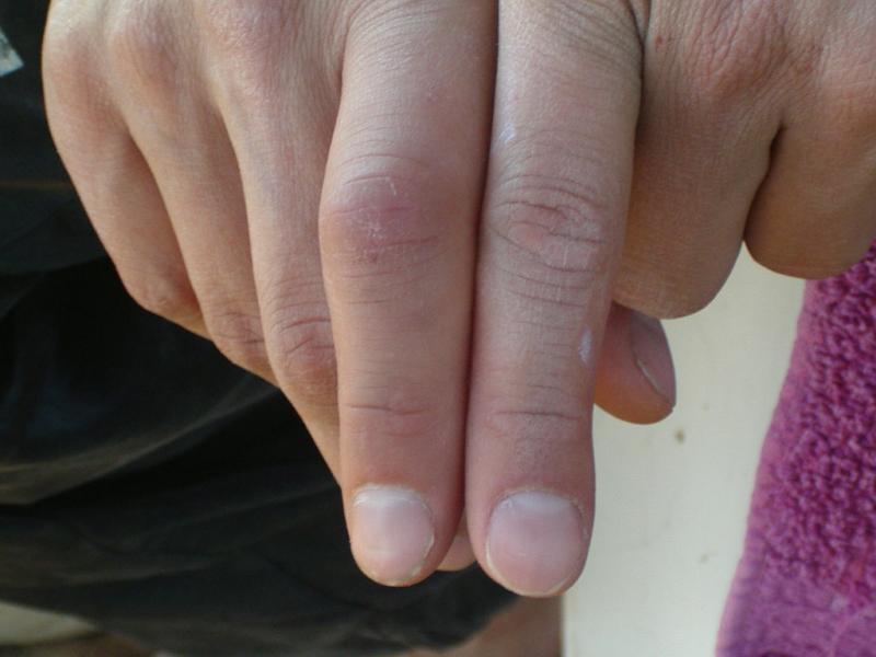 juckende bl schen am finger kleine bl schen an daumen krankheit blaeschen verbreiten. Black Bedroom Furniture Sets. Home Design Ideas